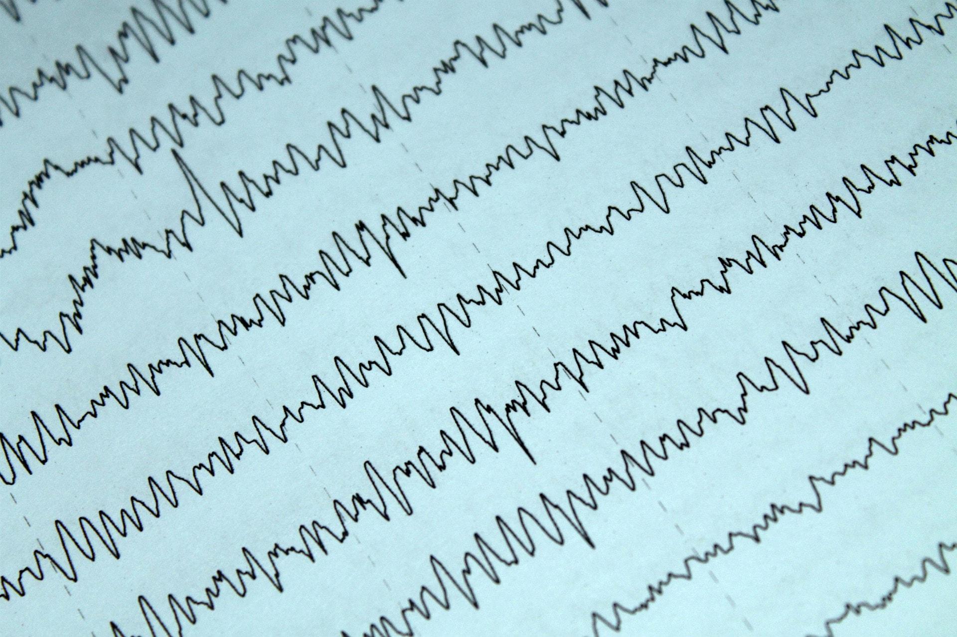 eeg brainwaves
